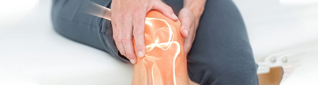 Arthritis | Causes, Symptoms, Diagnosis, Treatment